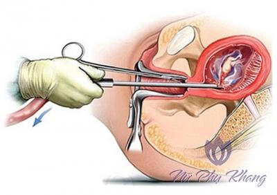 Viêm phần phụ do nạo phá thai