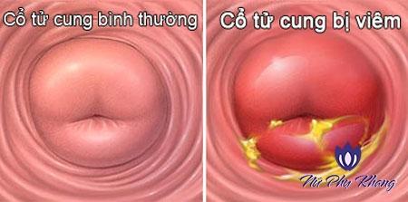 Cảnh báo 6 biến chứng nguy hiểm của viêm cổ tử cung