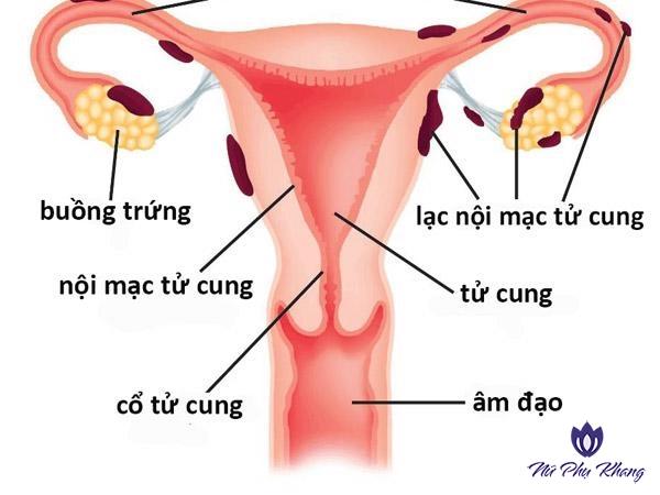 Đừng coi thường hiện tượng đau bụng kinh dữ dội đột ngột