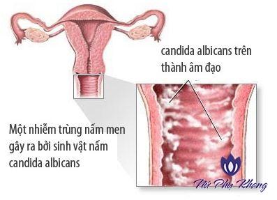 Điểm danh 3 căn bệnh viêm nhiễm điển hình khi mang thai