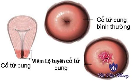 Độ tuổi nào dễ mắc viêm lộ tuyến cổ tử cung nhất?