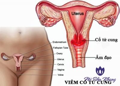 8 câu hỏi giúp chị em sớm phát hiện bệnh viêm cổ tử cung